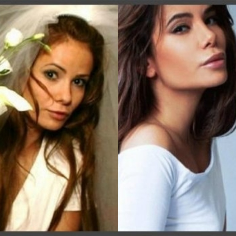 Пластические операции Айзы Анохиной: фото до и после